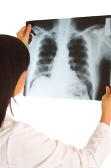 A tuberculose continua a atacar em Portugal