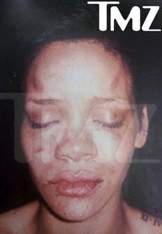 Foto de Rihanna foi divulgada na internet