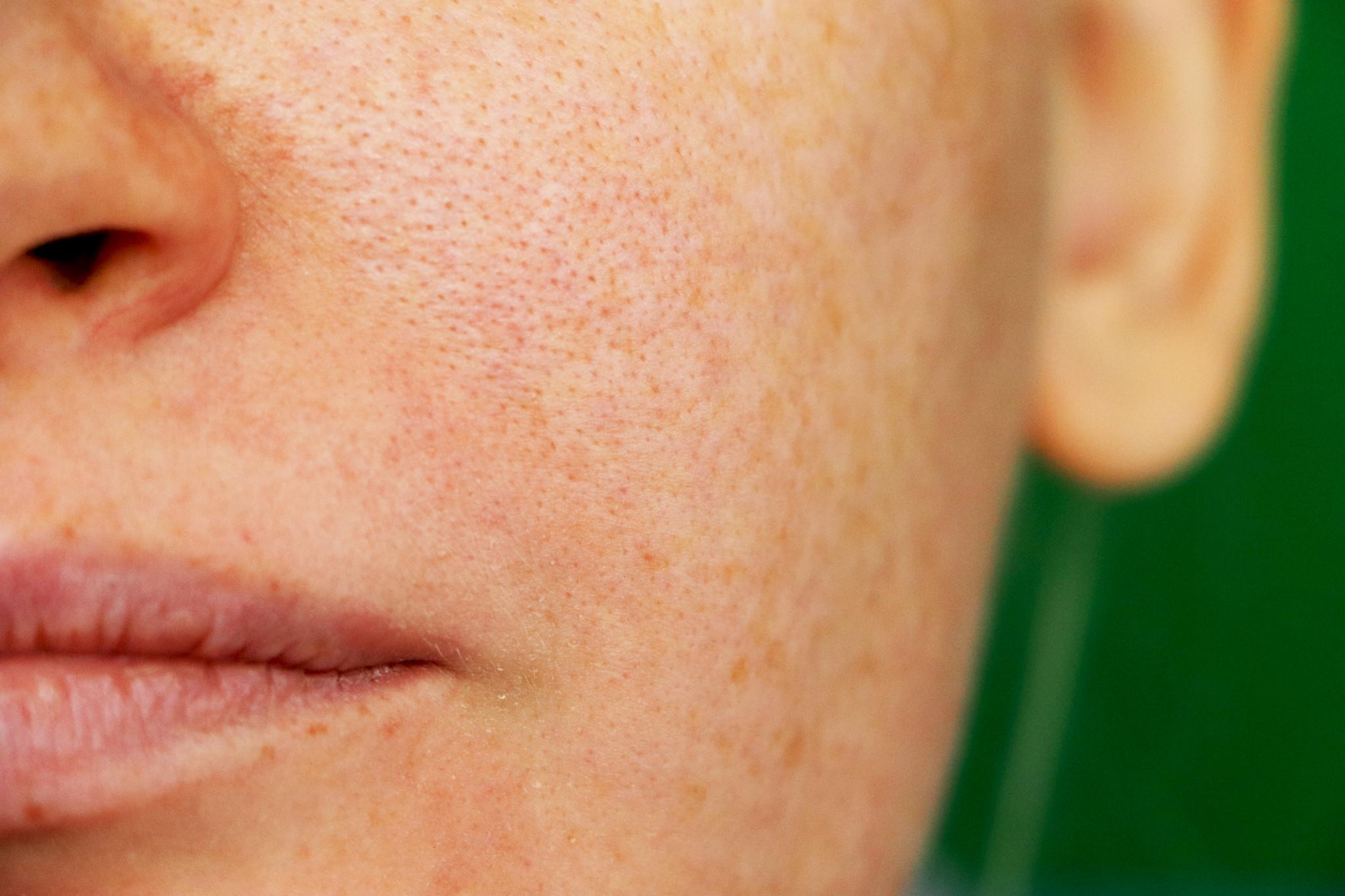 pele manchas skin face.jpg