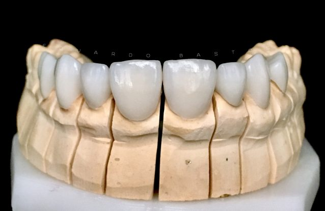 Para que servem e quais as vantagens das facetas dentárias