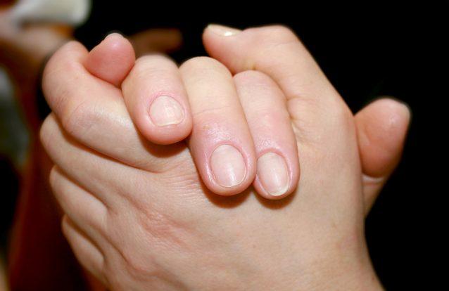 Porque temos manchas brancas nas unhas?