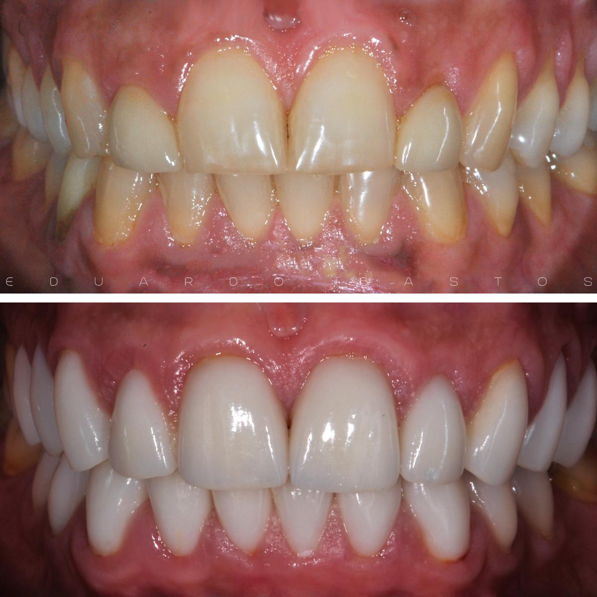 facetas dentárias.jpg