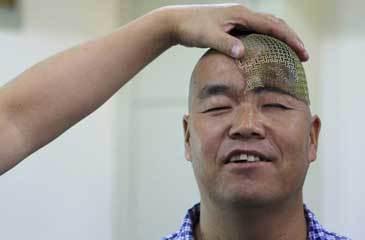 Chinês recupera após cirurgia ao crânio feita com a ajuda de uma impressora 3D